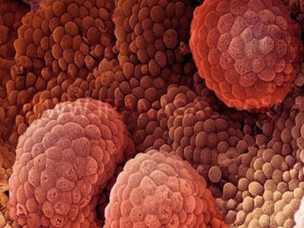 اشعه یکی از پر کاربردترین شیوه های درمانی برای نابودی تومور های سرطانی است